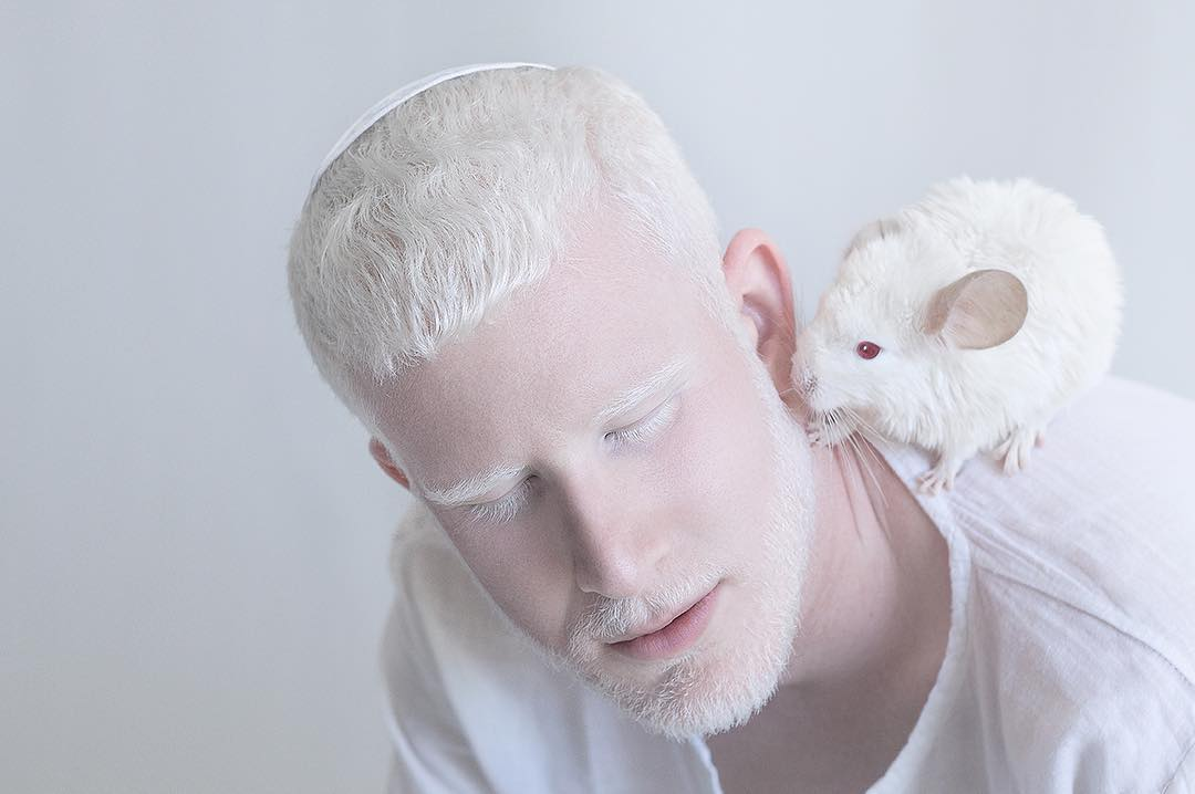 breathtaking-beauty-of-albinos-was-captured-by-a-photographer-03