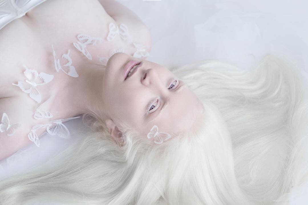 breathtaking-beauty-of-albinos-was-captured-by-a-photographer-05