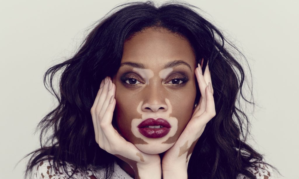 1. Winnie Harlow (born Chantelle Brown-Young)