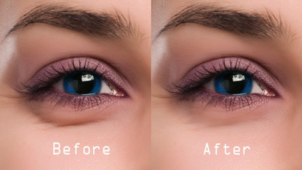 Get Rid of Under Eye Bags Emergency Tips 1