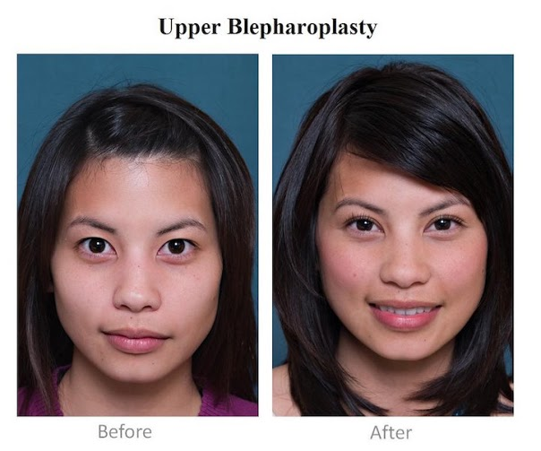 most_popular_cosmetic_surgery_procedures_in_the_hilippines_04