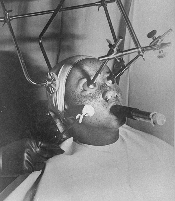 weirdest_beauty_salon_procedures_from_the_past_06