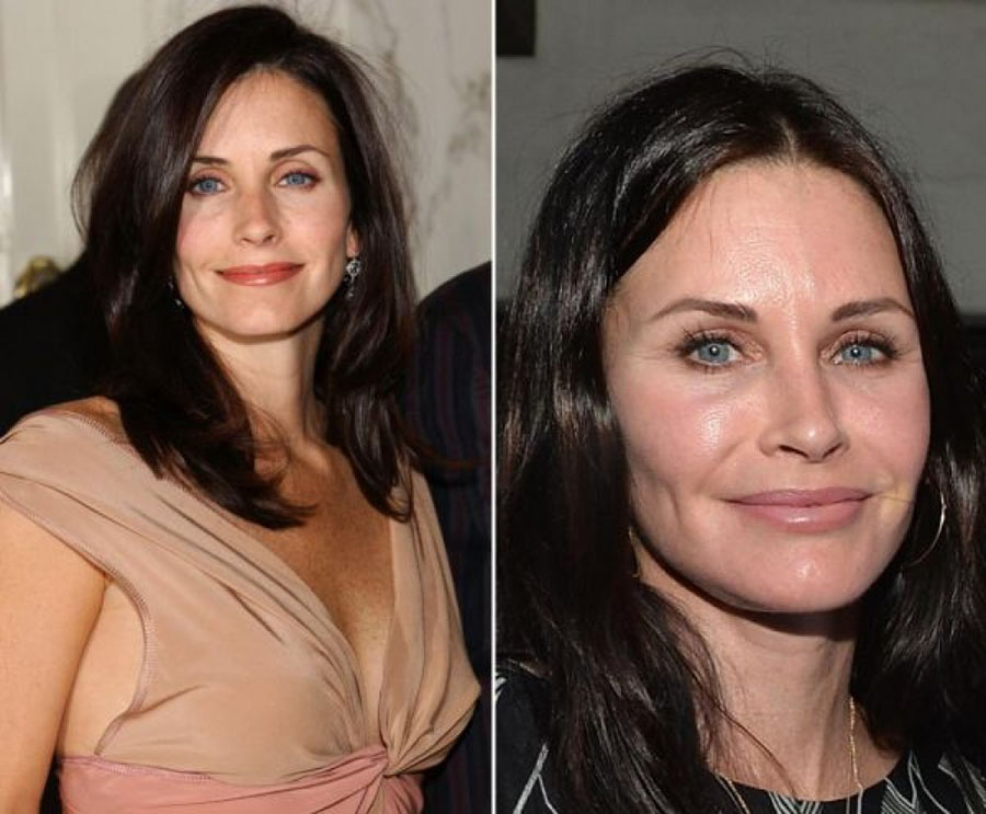 gorgeous-stars-before-and-after-botox-01