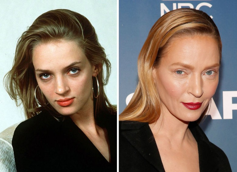 gorgeous-stars-before-and-after-botox-03