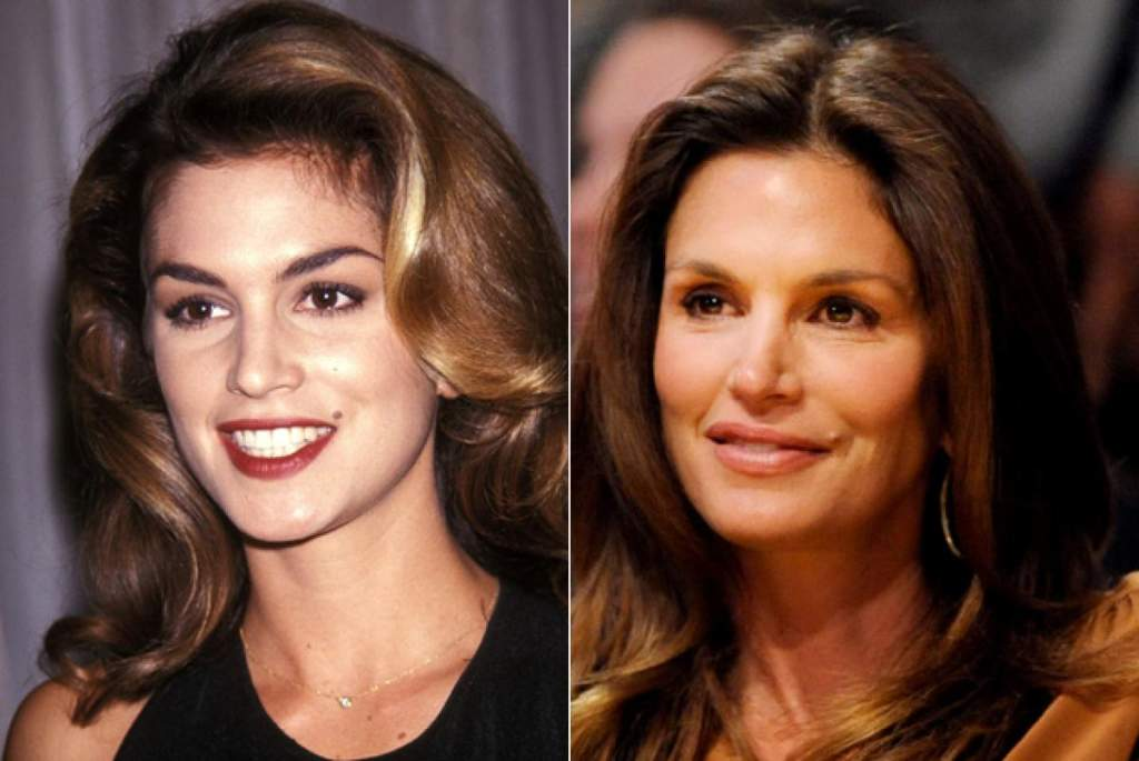 gorgeous-stars-before-and-after-botox-06