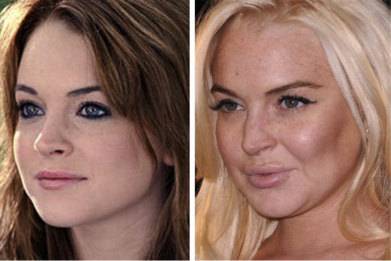 gorgeous-stars-before-and-after-botox-08