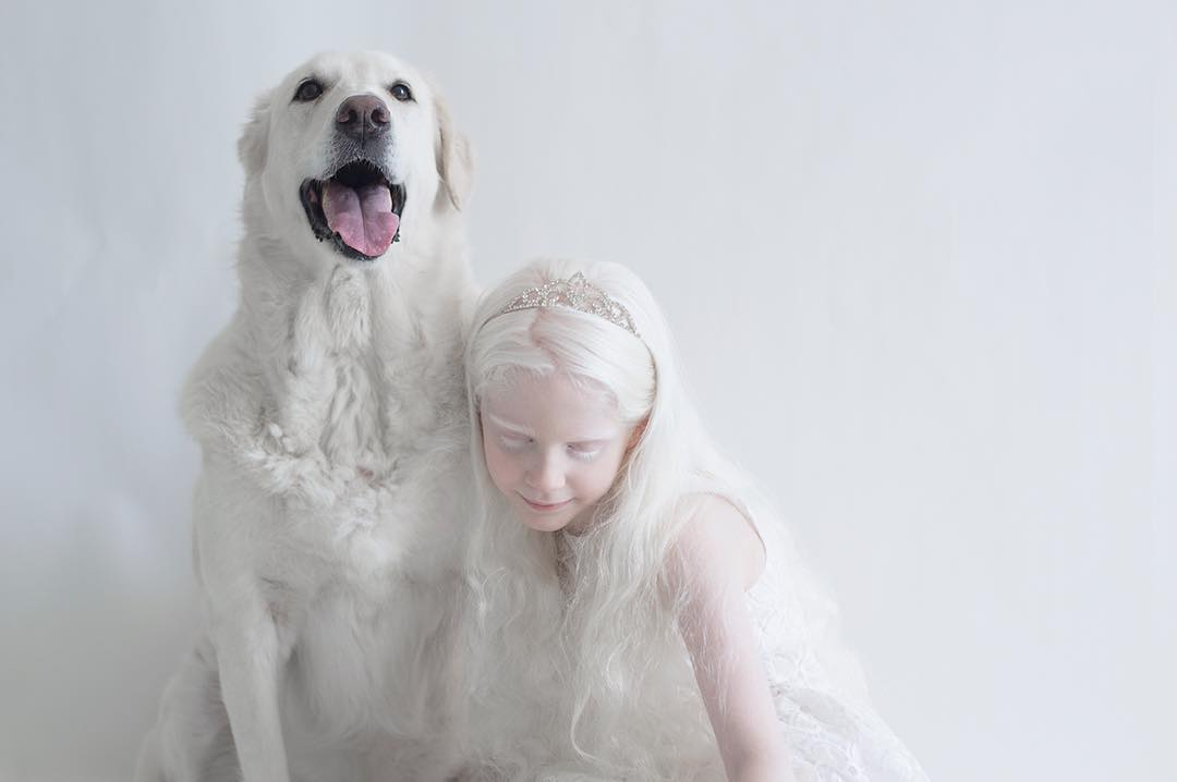 breathtaking-beauty-of-albinos-was-captured-by-a-photographer-02