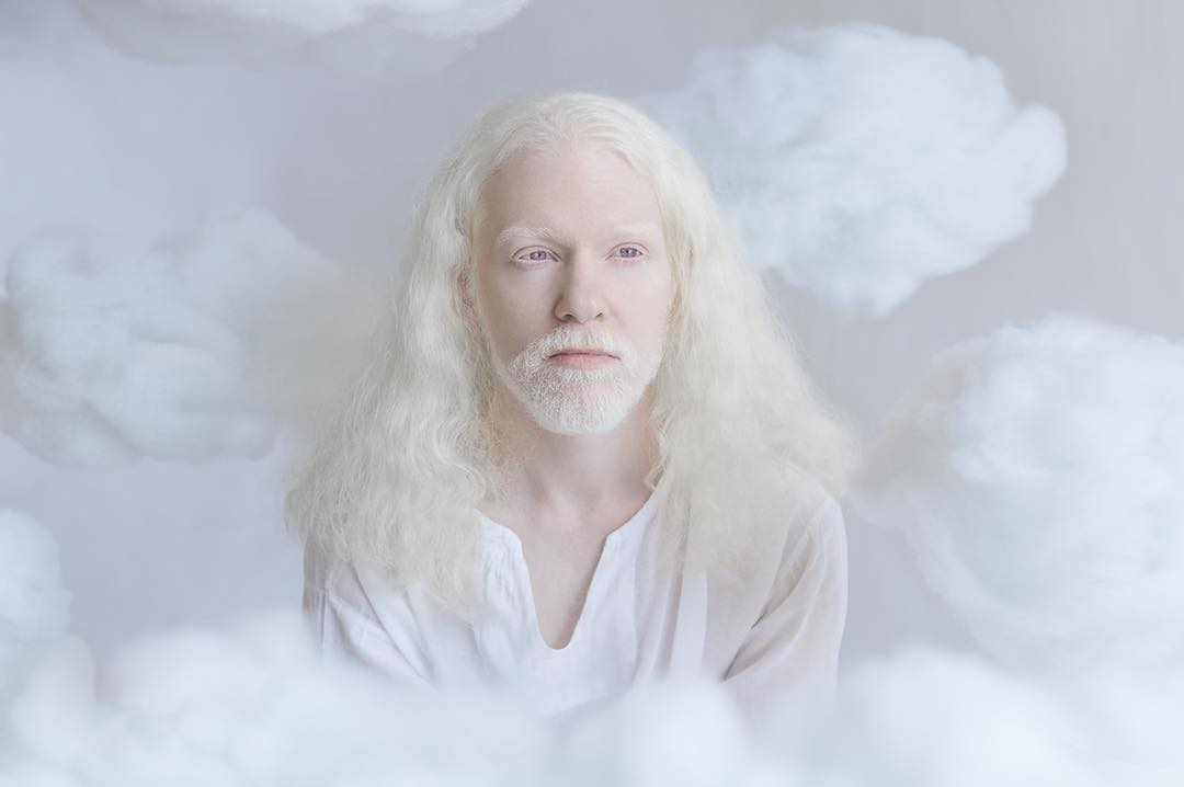 breathtaking-beauty-of-albinos-was-captured-by-a-photographer-04