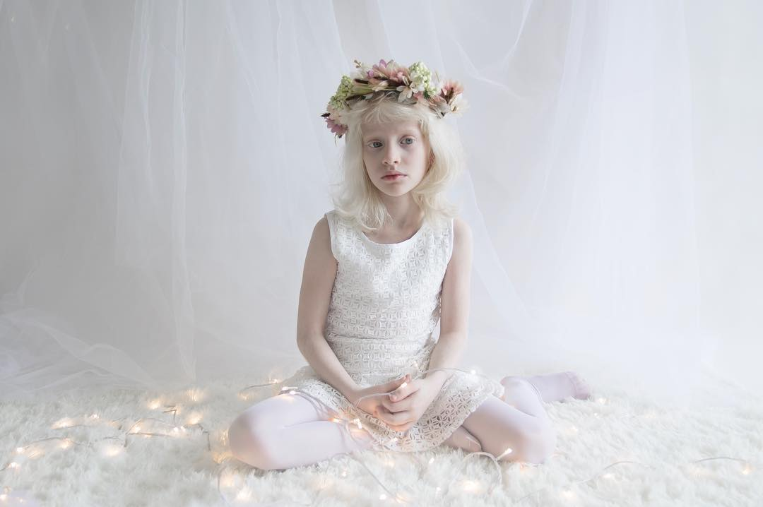 breathtaking-beauty-of-albinos-was-captured-by-a-photographer-10