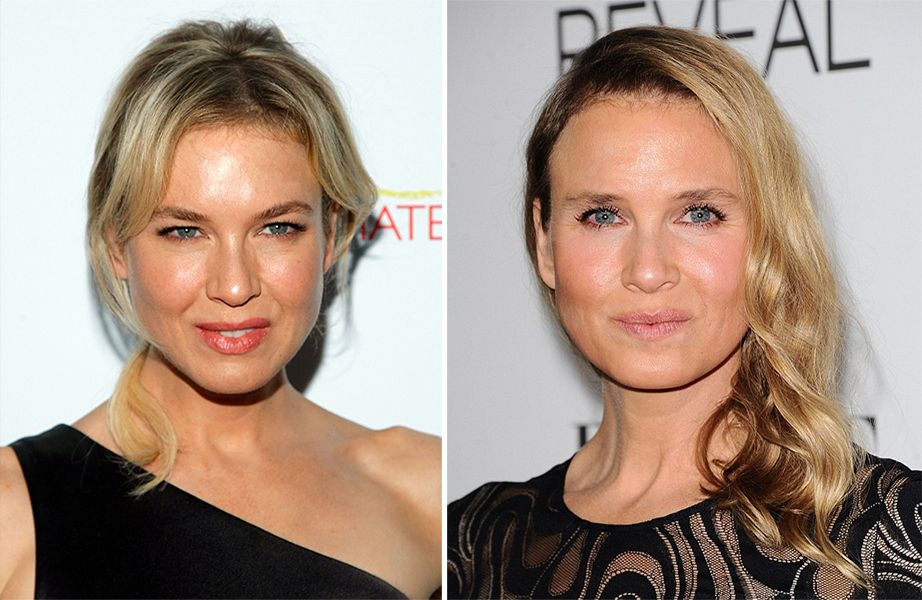 celebs_who_should_probably_stop_denying_plastic_surgery_rumors_03