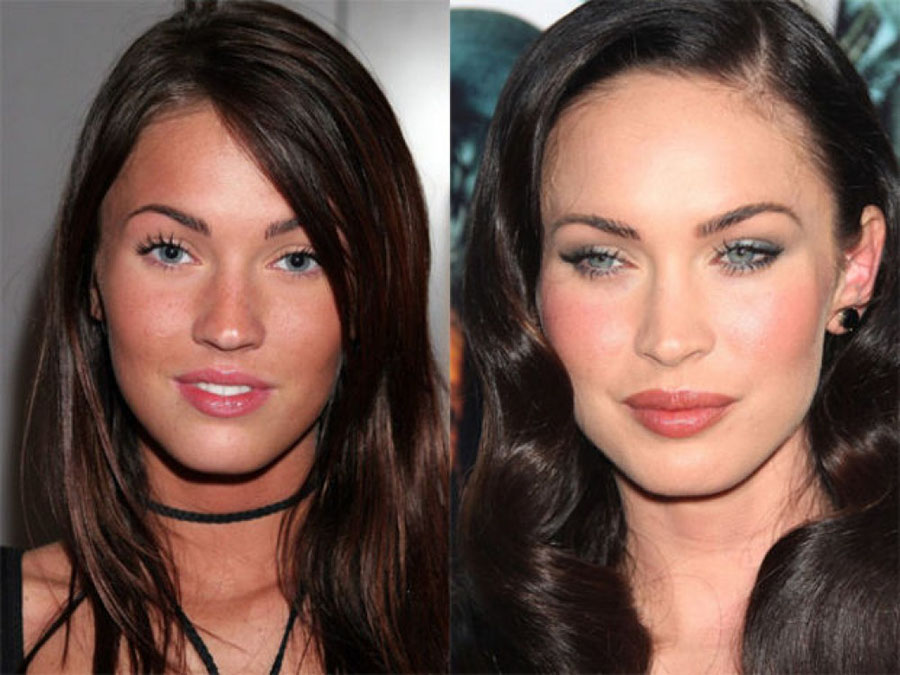 celebs_who_should_probably_stop_denying_plastic_surgery_rumors_05