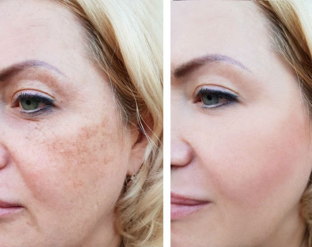 8 Killer ways To Look Younger Without Surgery how to look younger without 04