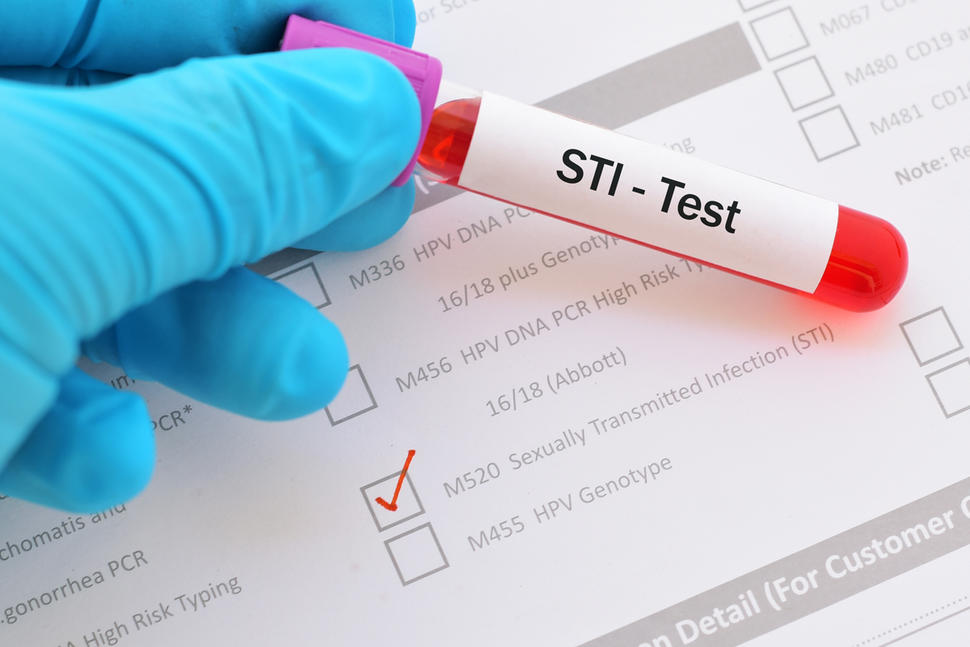 STI test | 8 Self-Checks Every Woman Should Do | Her Beauty