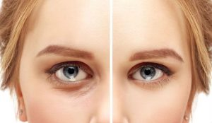 Blepharoplasty – Eyelid Surgery For A Fresher, Younger Look | Her Beauty