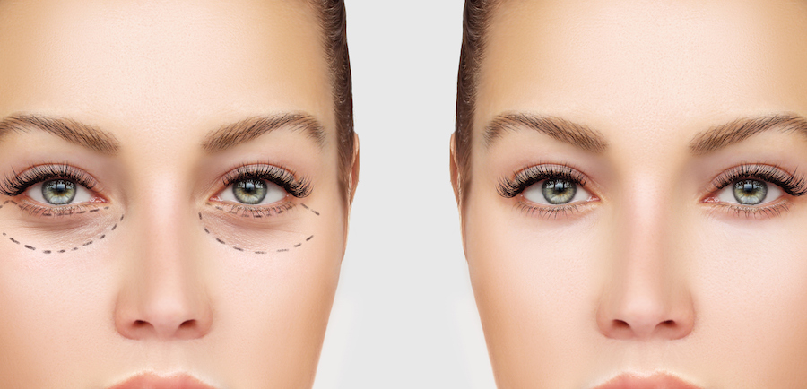 Upper Eyelid Surgery | Blepharoplasty – Eyelid Surgery For A Fresher, Younger Look | Her Beauty