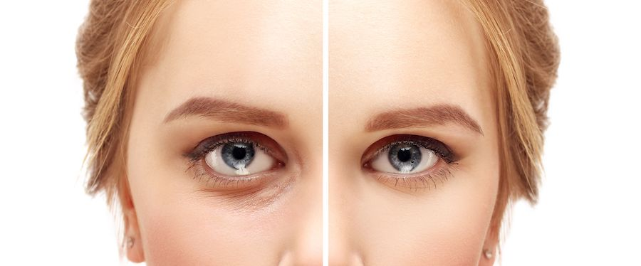 Lower Eyelid Surgery | Blepharoplasty – Eyelid Surgery For A Fresher, Younger Look | Her Beauty
