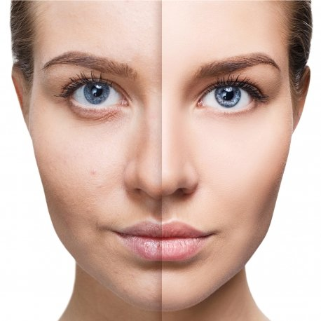 Exfoliation results | What Is Microdermabrasion, And Will It Improve Your Skin | Her Beauty