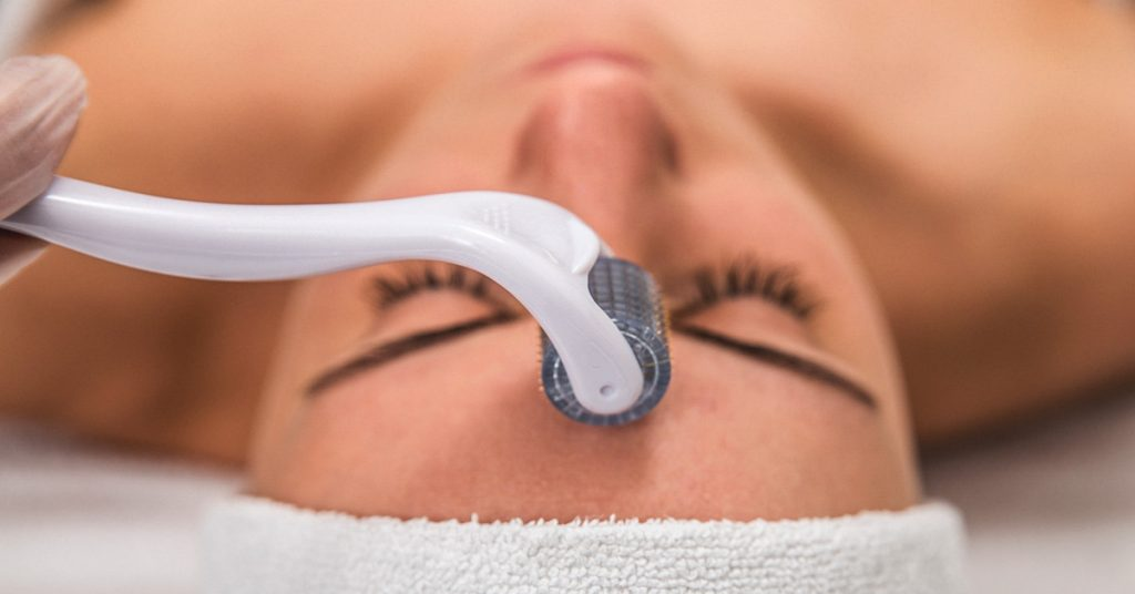 Does microneedling hurt? | Everything There Is To Know About Microneedling | Her Beauty