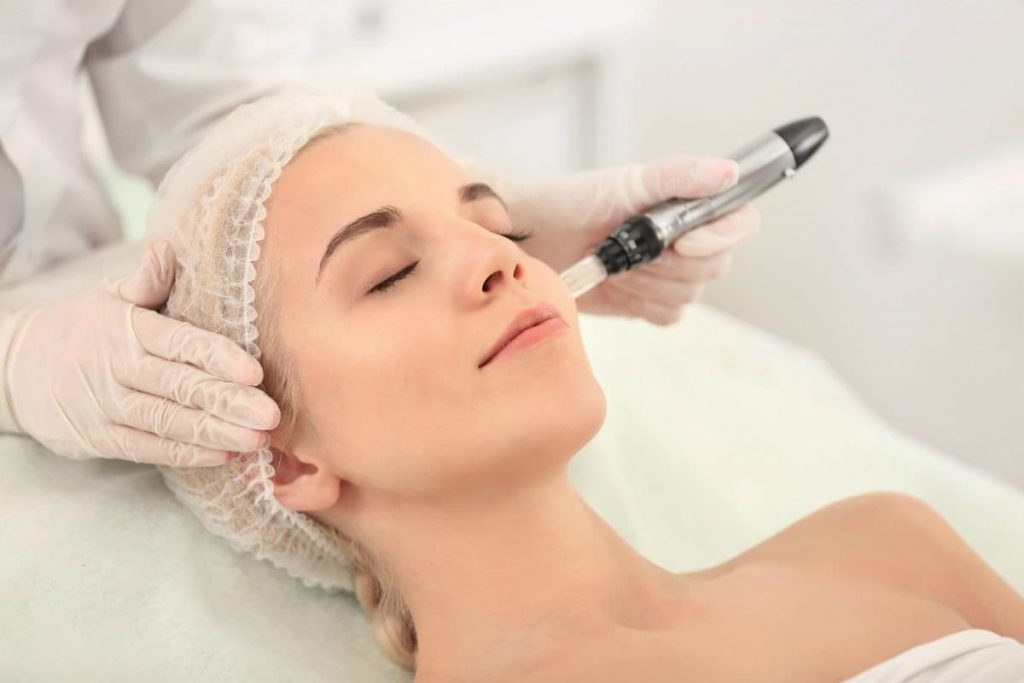 Microneedling  | Everything There Is To Know About Microneedling | Her Beauty