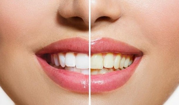 Bye-bye white teeth | 7 Reasons To Switch From Coffee To Tea | Her Beauty