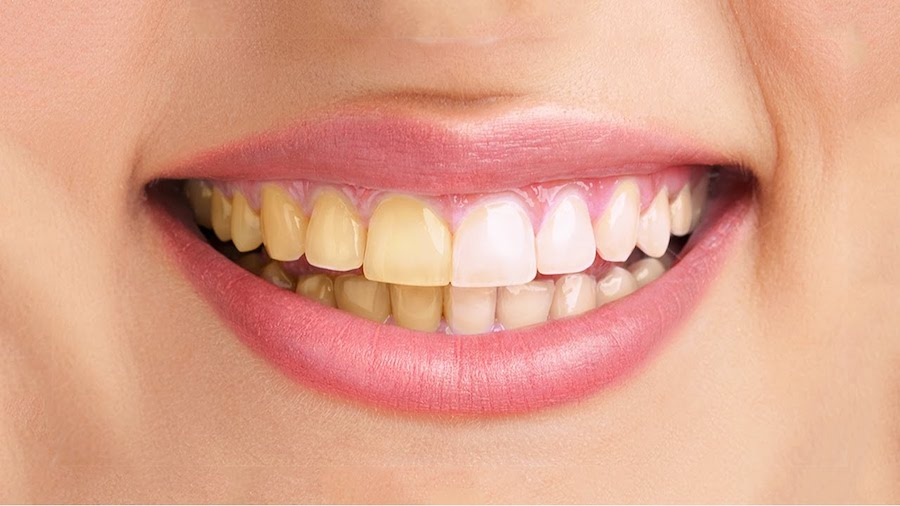 DIY Teeth Whitening   5 Things Everyone Should Know About Teeth Whitening   Her Beauty