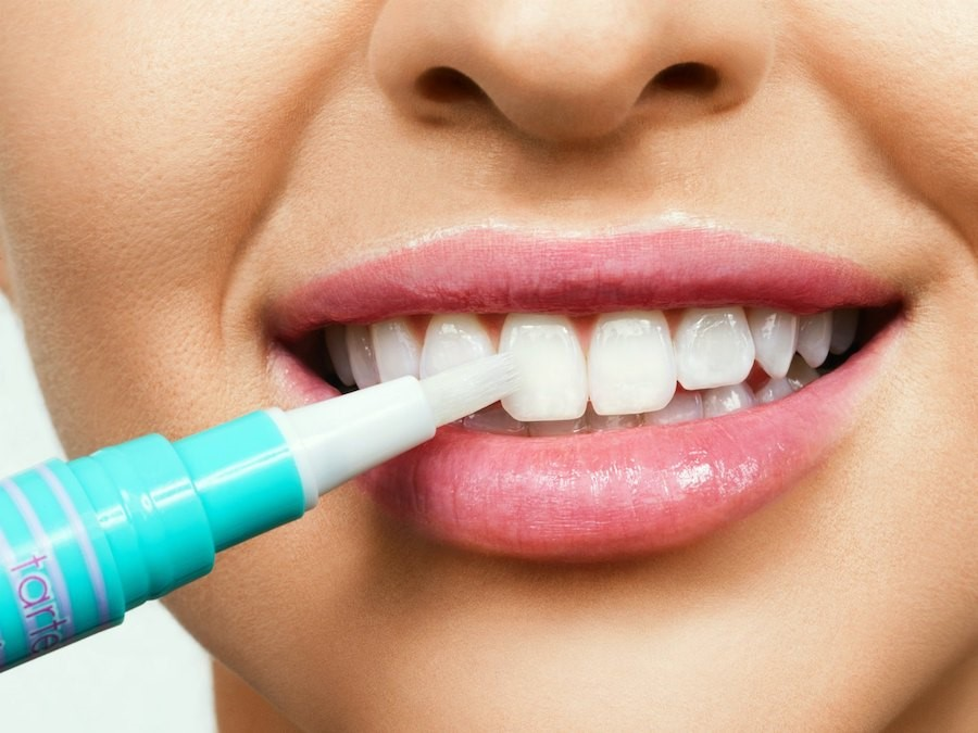 How Does Teeth Whitening Work?   5 Things Everyone Should Know About Teeth Whitening   Her Beauty