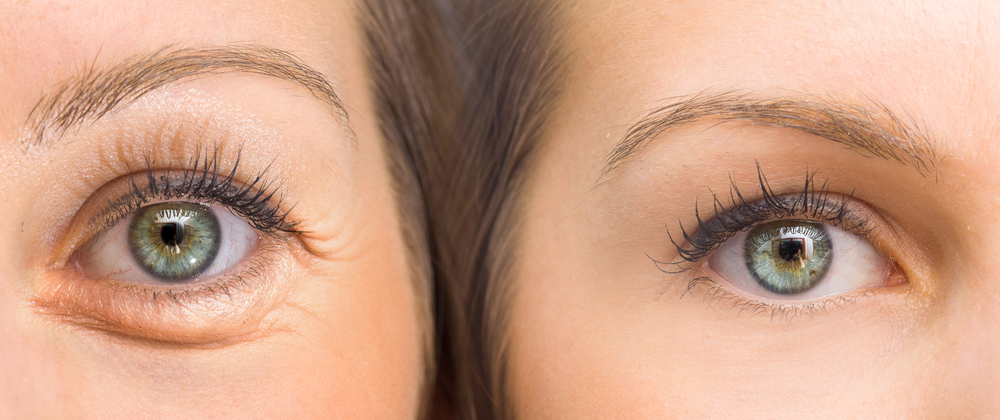 الأشياء التي يجب أن تعرفها عن الخطوط المتجعدة حول العيون و كيفية التخلص منه | Her Beauty