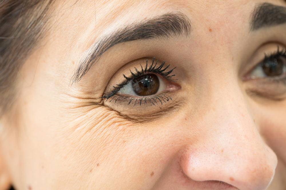 الأشياء التي يجب أن تعرفها عن الخطوط المتجعدة حول العيون و كيفية التخلص منه #4 | Her Beauty