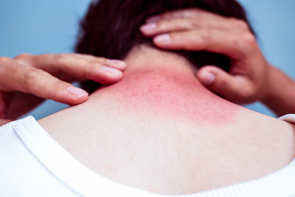 7 Things That Happen to Your Skin When You Skip the Sunscreen #3 | Her Beauty